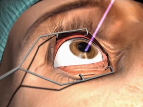 عمل پی آر کی (PRK) چشم-سورن طب رازی